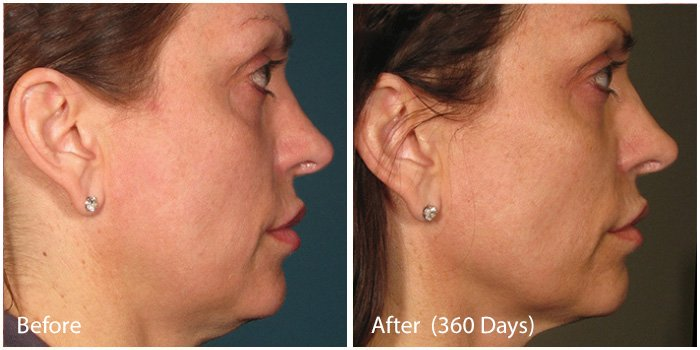 Before and After - Ultra Skin Tightening 3
