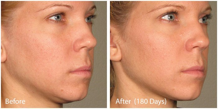 Before and After - Ultra Skin Tightening 2