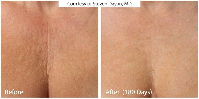 Before and After - Ultra Skin Tightening