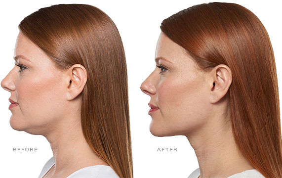 Say Goodbye To Your Double Chin With Kybella®!