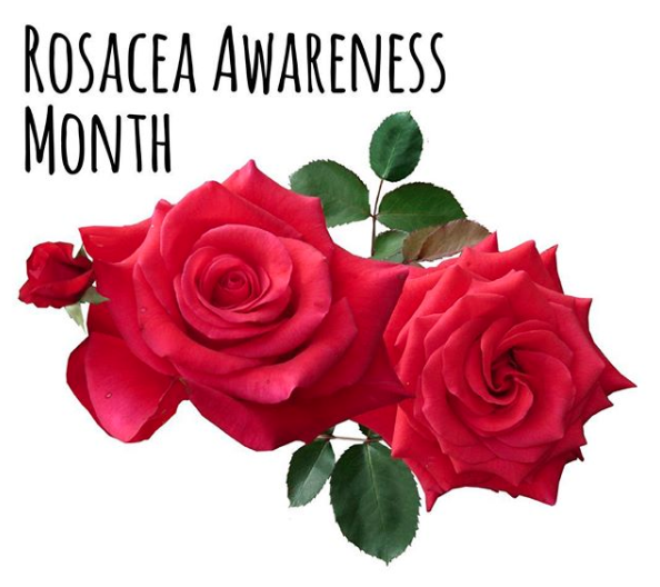 Learn How to Treat Your Rosacea!